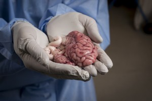 This pig brain will provide researchers with cells that are crucial in helping to get the medicine across the blood-brain barrier. Photo: Geir Otto Johansen.