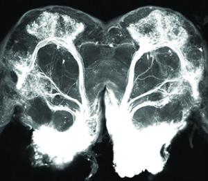 Nevronene til hann-nattsvermeren er illustrert gjennom tre ulike farger. Nevronene markert med grønn og turkis reagerer på to forskjellige substanser som blir frigitt av hunnen for å tiltrekke seg hannen. Nevronet som er farget svart bærer informasjon om en substans frigitt av en hunn av en annen art, altså en mulig feilkilde. Denne substansen gjør at hann-nattsvermeren flykter fra luktkilden. (Illustrasjon: NTNU)