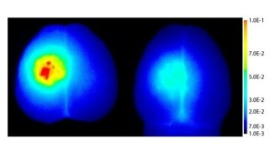 The picture shows a fluorescent macromolecule in brain tissue. Left: The brain is treated with ACT after injection of the fluorescent molecule. To the right no treatment by injection.